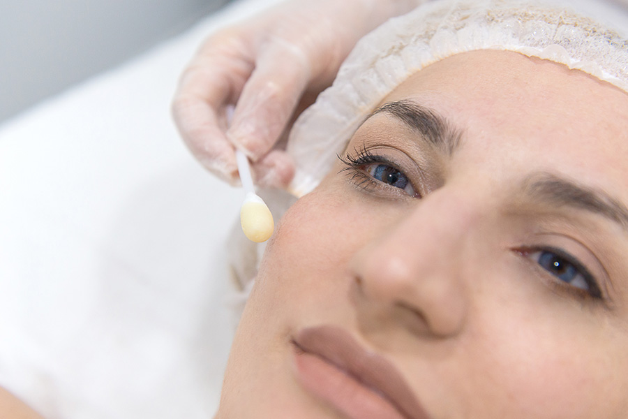 Medische Peels Image Skincare
