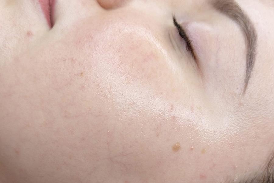 Egale huid resultaat Dermaplaning