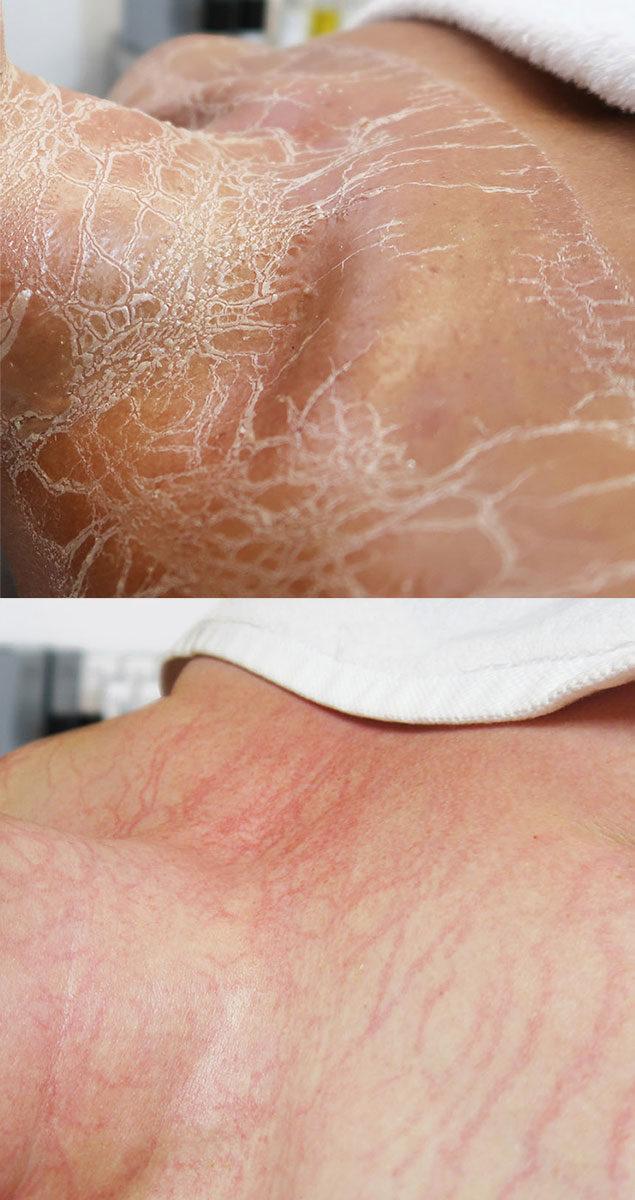 Tijdens en na BioPulse behandeling